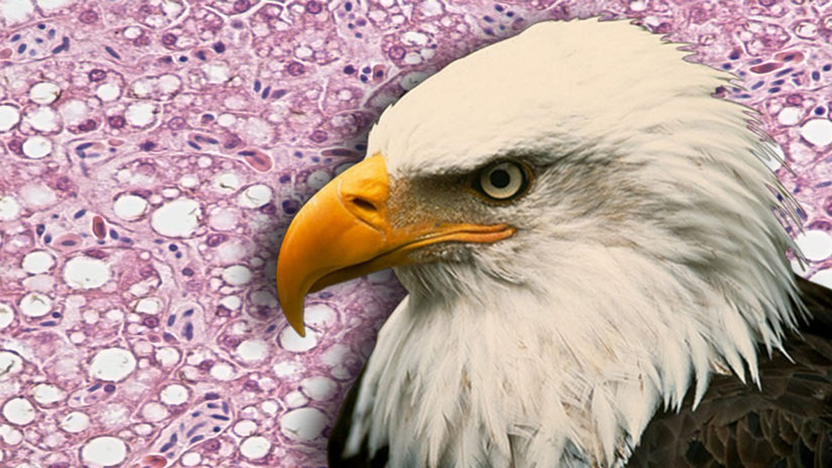 A microscopic image of a liver from a bald eagle that died from Wisconsin River Eagle Syndrome....