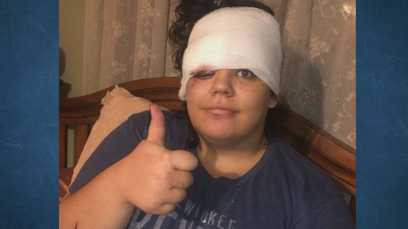 A Manawa woman is recovering after she survived what could have been a deadly fall in Devil's...