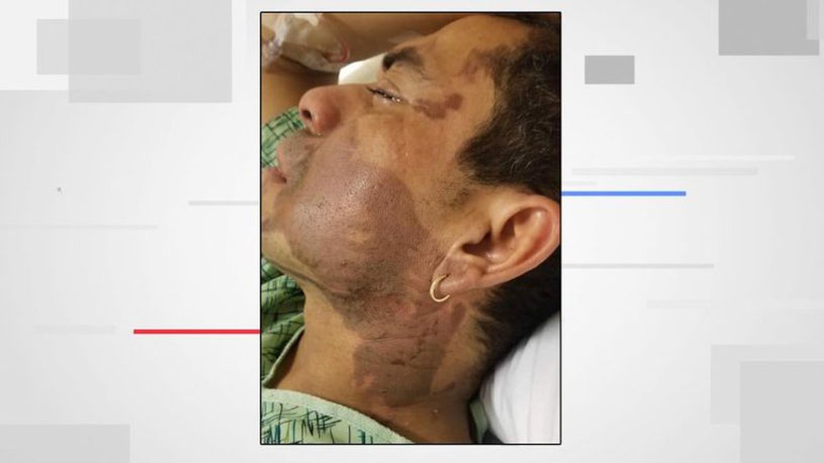 Mahud Villalaz suffered second-degree burns to his face  (FOX6)