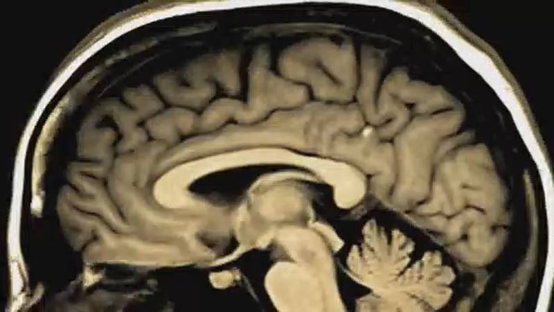 Are you feeling more forgetful than normal?  Cognitive experts said the pandemic could be the...